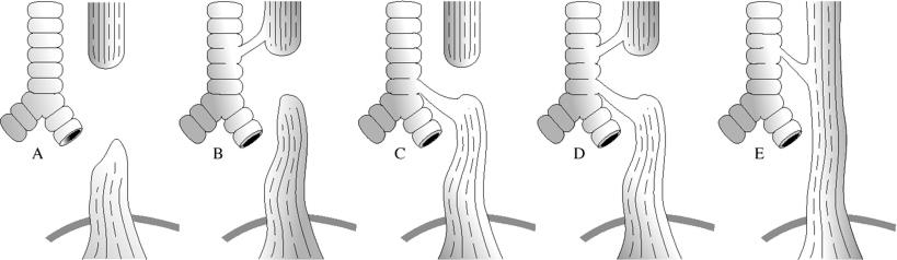 L'atrésie de l'œsophage : une maladie méconnue - Site de l'ABeFAO
